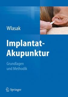 Implantat Akupunktur