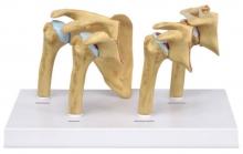 4-Stadien-Osteoarthritis-Modell (OA) Schulter