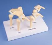 4-Stadien-Osteoarthritis Schulter Modell